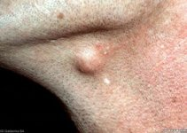 sebaceous cyst pictures 1