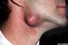 sebaceous cyst pictures 2