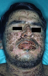steven johnson syndrome pictures 4
