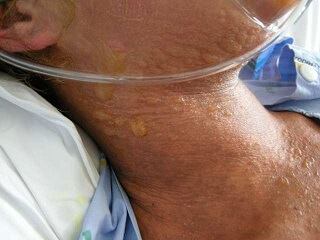 stevens johnson syndrome photos