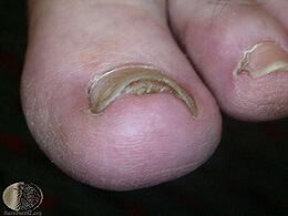 toenail coming off